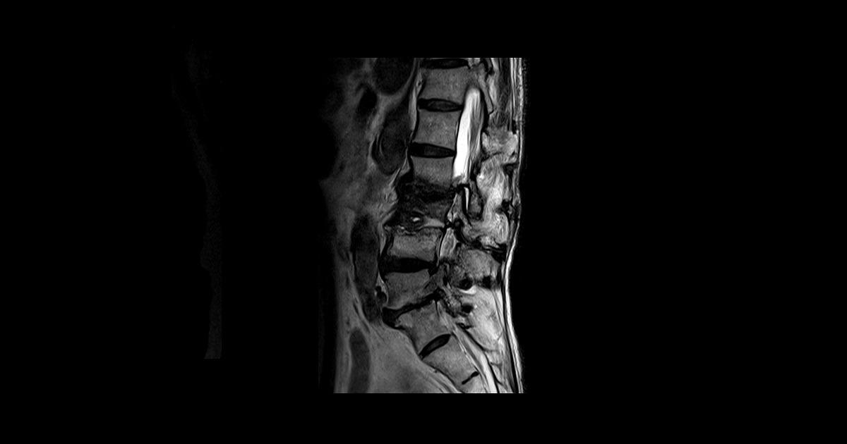 脊柱管狭窄症の鍼灸